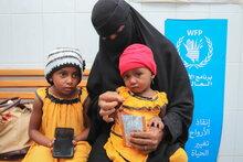 ارتفاع كبير لحالات سوء التغذية بين الأطفال الصغار في اليمن في ظل تردي الأوضاع