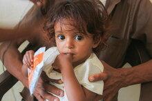 وكالات الأمم المتحدة تحذر: فرص منع حدوث مجاعة في اليمن تتضاءل