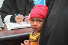 مدير برنامج الأغذية العالمي يحذر مجلس الأمن التابع للأمم المتحدة من مجاعة وشيكة في اليمن