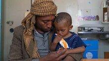 وكالات الأمم المتحدة تحذّر من ارتفاع مستويات الجوع الحاد مع احتمال حدوث مجاعة في أربع مناطق ساخنة