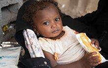 مساعدات برنامج الأغذية العالمي تنقذ اليمن من الانزلاق نحو المجاعة لكن معاناة ملايين اليمنيين لا تزال مستمرة