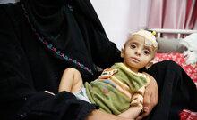 برنامج الأغذية العالمي يرحب بإحراز تقدم مع السلطات في صنعاء بشأن اتخاذ تدابير تضمن له مواصلة عمله بنزاهة في اليمن